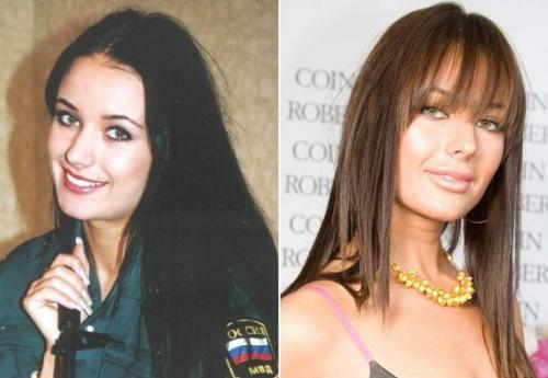 """Оксана Федорова Специалисты отметили, что на изменения во внешности подтолкнул Оксану возраст. Она провела реконструктивную контурную пластику и верхней, и нижней губы. """"Подняты уголки рта, видна чрезмерно очерченная кайма губ"""", - не похвалили работу хирургов эксперты."""
