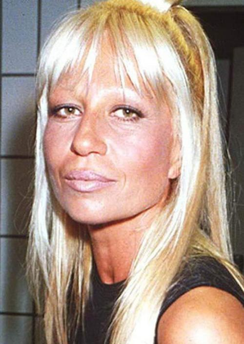 Донателла Версаче Это одна из самых известных жертв пластики. Будем честны, свое лицо Донателла превратила в маску, а губы год от года будто становятся все больше и больше.