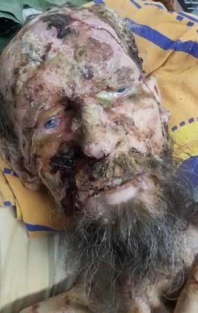 Истерзанный медведем житель Тувы чудом выжил, пролежав месяц в берлоге как запас еды