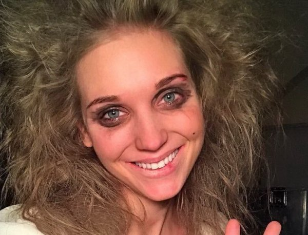 """""""Бедный Харламов"""": старушечье лицо Асмус на фото напугало фанатов"""