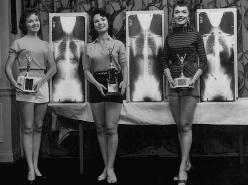 Мисс идеальная осанка - 1956 год В этом конкурсе оценивалась не внешность конкурсанток, а их рентгеновские снимки. Модели Марианна Баба, Луис Конвей и Рут Свенсен стоят возле своих рентгеновских фото, которые принесли им призовые места.