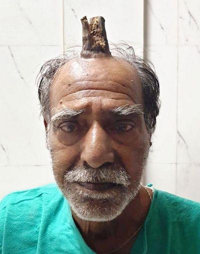 Мужчине удалили 10-сантиметровый рог