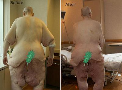 200-килограммовый мужчина попросил денег на здоровье у государства
