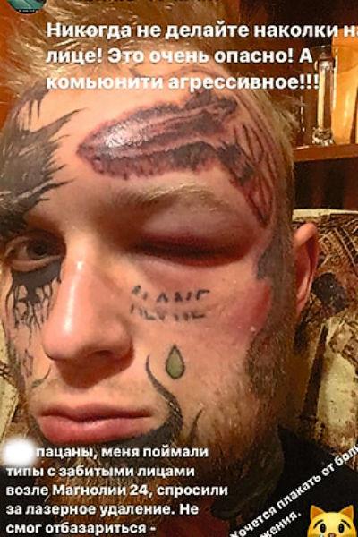 Решивший удалить татуировки сын Елены Яковлевой рассказал правду про избиение