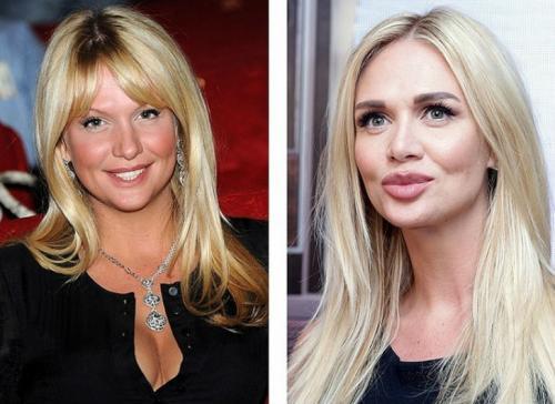 Виктория Лопырева Лицо «Мисс Россия — 2003» претерпело значительные изменения. Теперь фотомодель и телеведущую трудно узнать.