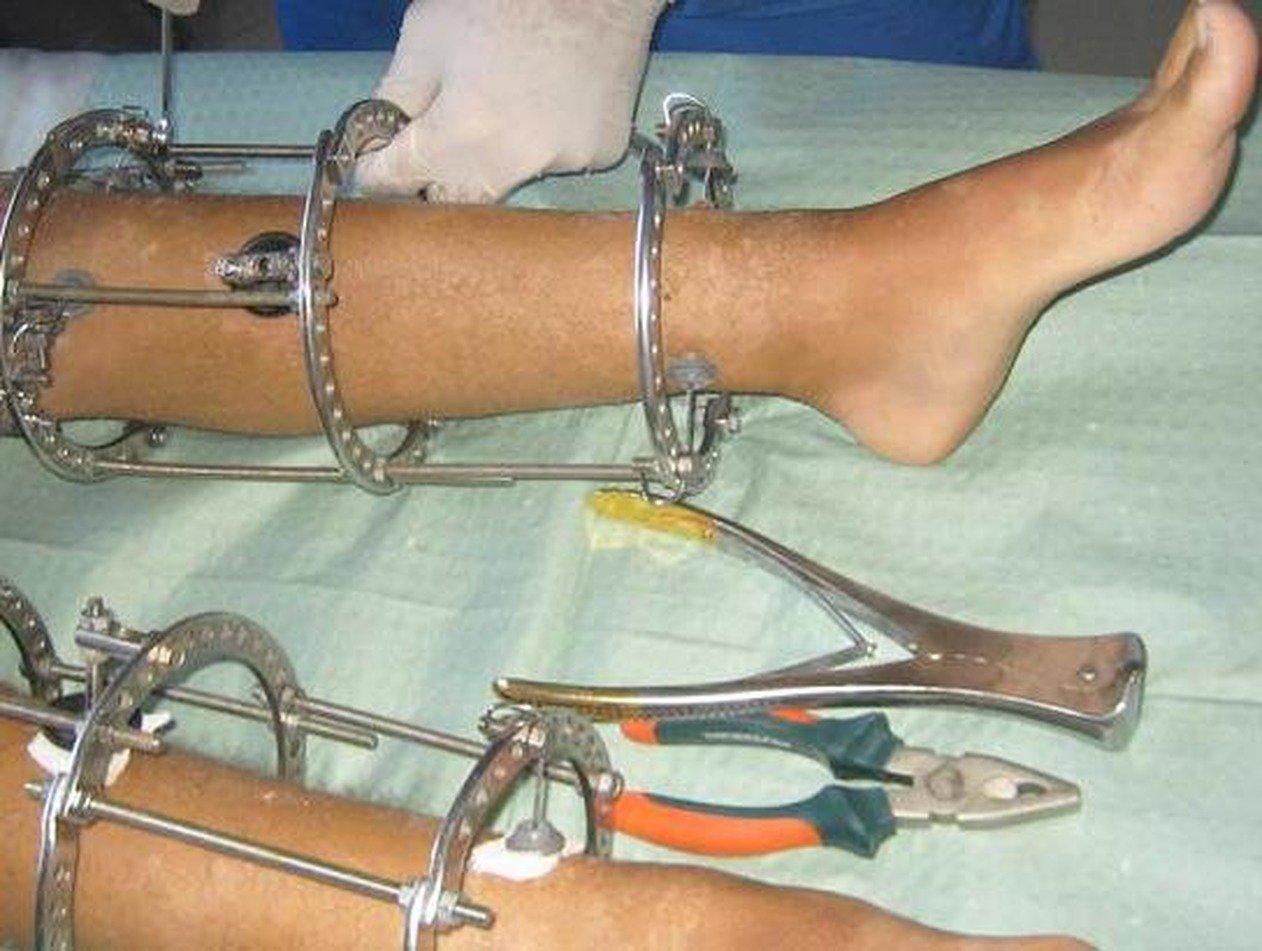 Студент в Подмосковье из-за COVID-19 оперирует себя на дому