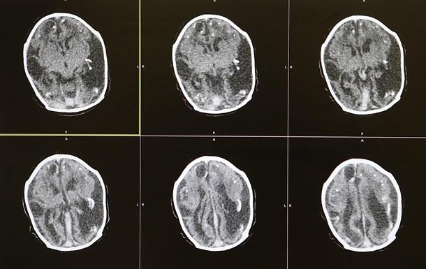Ученые нашли причину шизофрении