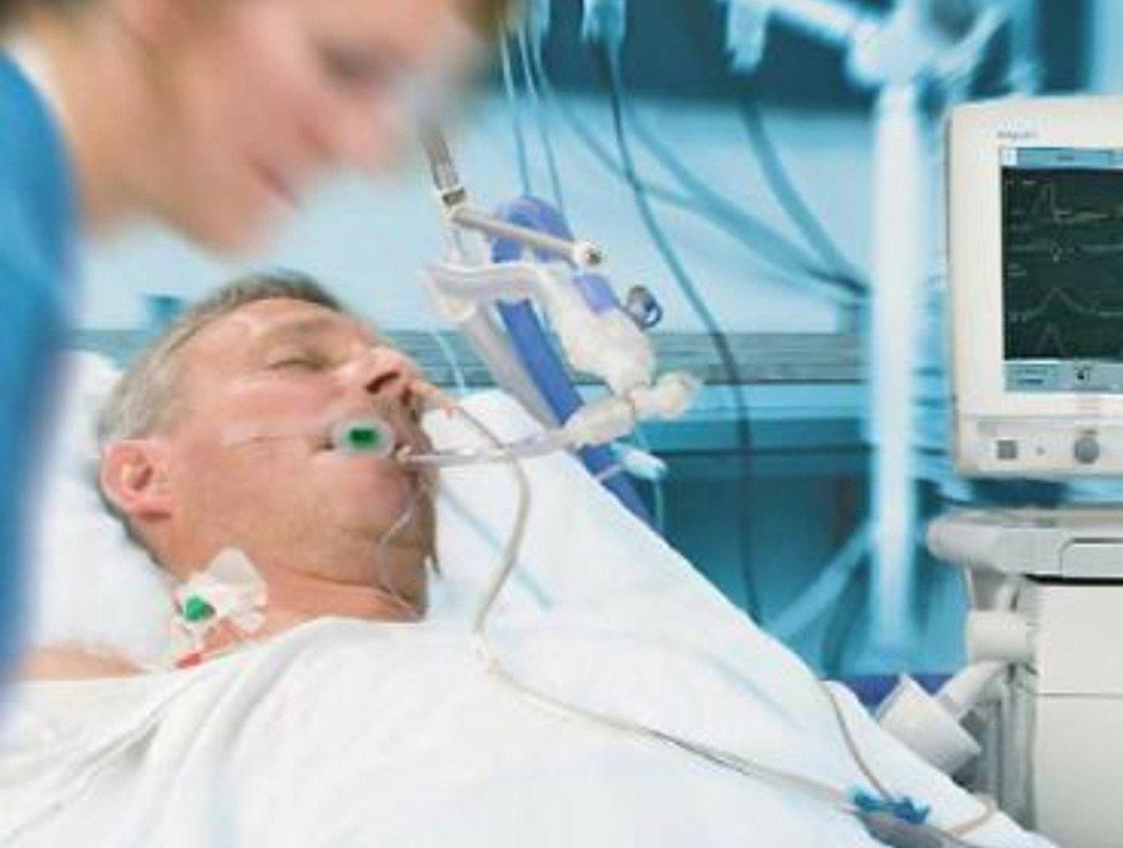 Врачи показали легкие пациентов, заболевших коронавирусом (ФОТО)
