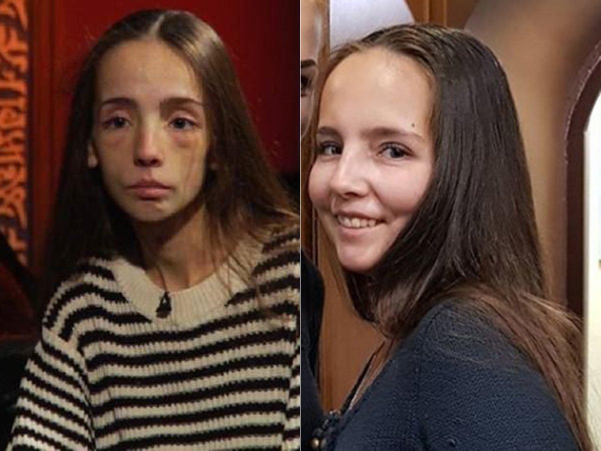 Звезда «Битвы экстрасенсов» победила анорексию и стала красавицей