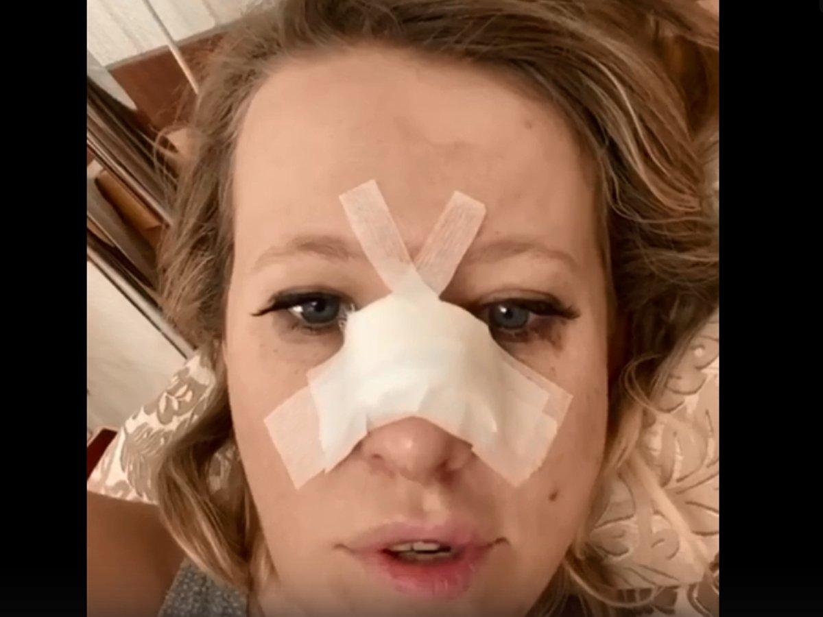 """""""Бывает"""": Ксения Собчак сломала нос и перенесла операцию"""