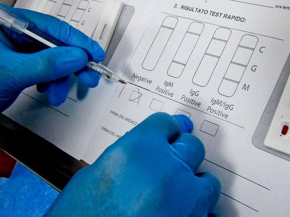 Тесты китайских врачей на антитела к коронавирусу встревожили весь мир
