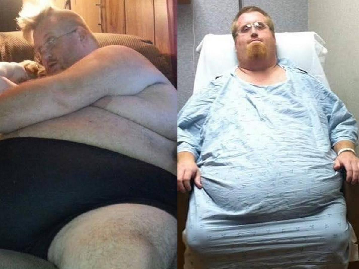 Американец похудел на 150 килограммов