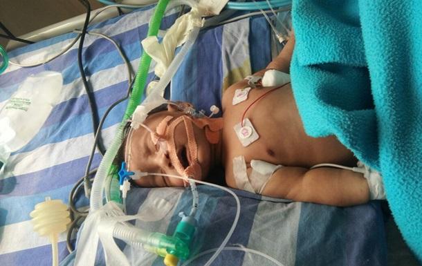 Ученые подсчитали число погибших младенцев из-за грязного воздуха