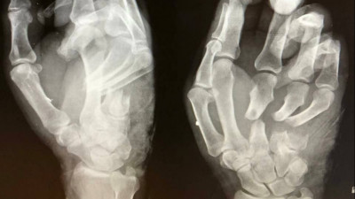 Красногорские врачи спасли мужчине сломанную руку